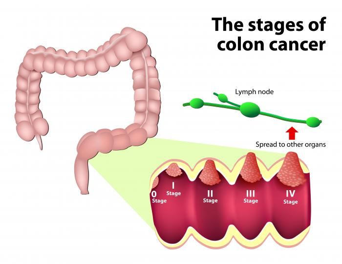i cancer colorectal
