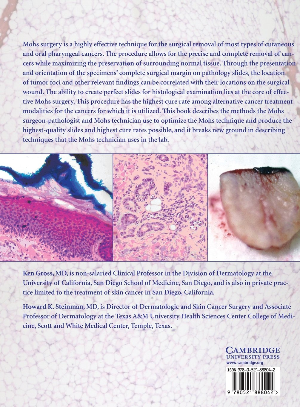 hpv-positive oropharyngeal cancer treatment