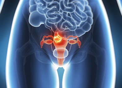 uterine cancer recurrence cancerul colorectal doare