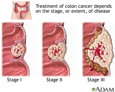 stage 4 cancer colorectal