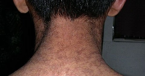 confluent and reticulated papillomatosis homeopathic treatment