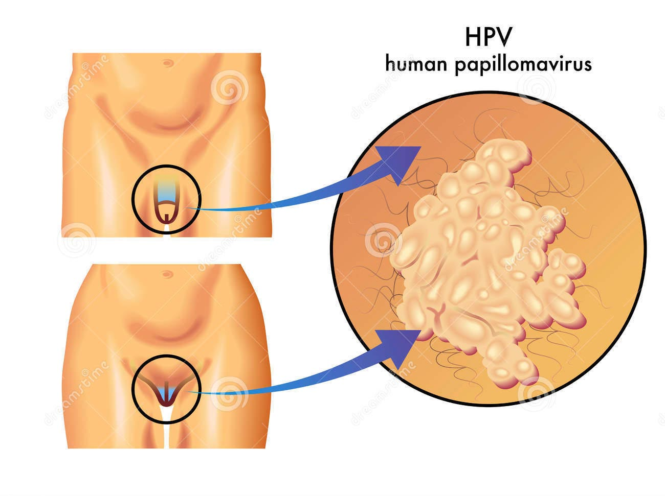 hpv sintomi donne