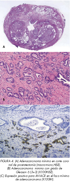 colorectal cancer 80 by 2019 journal about human papillomavirus