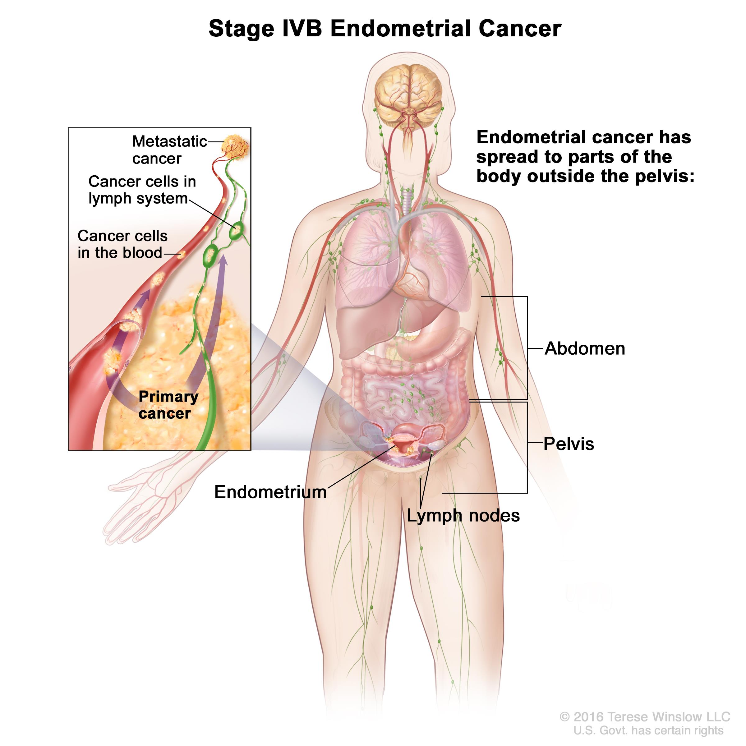 cervical cancer metastatic sites peritoneal cancer ribbon color