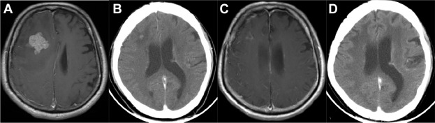 renal cancer with mets to brain
