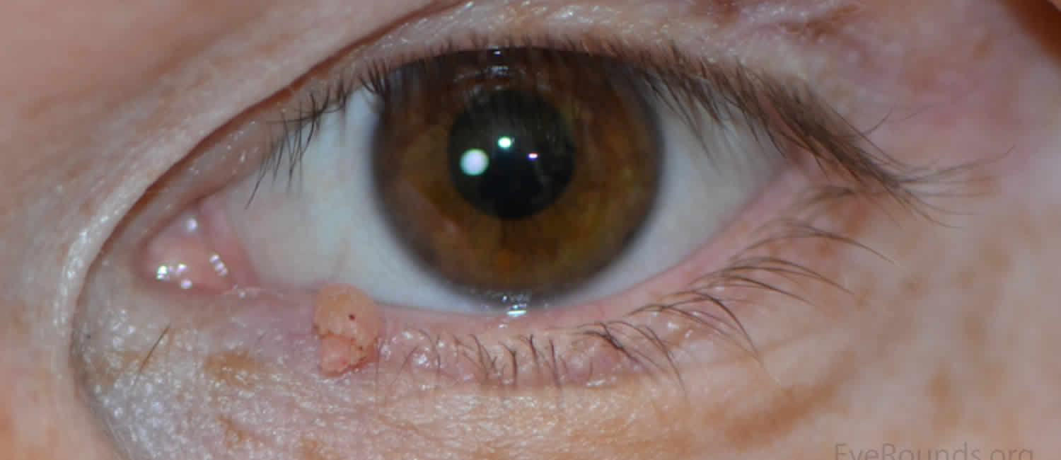 squamous papilloma eyelid picture papillary lesion procedure