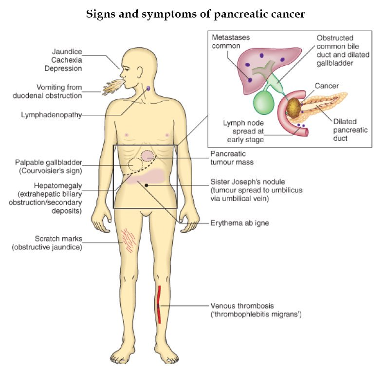 pancreatic cancer what are the symptoms