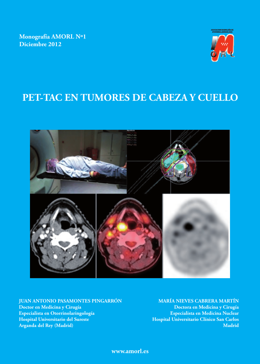 papilloma and cancer hpv virus cancer risk