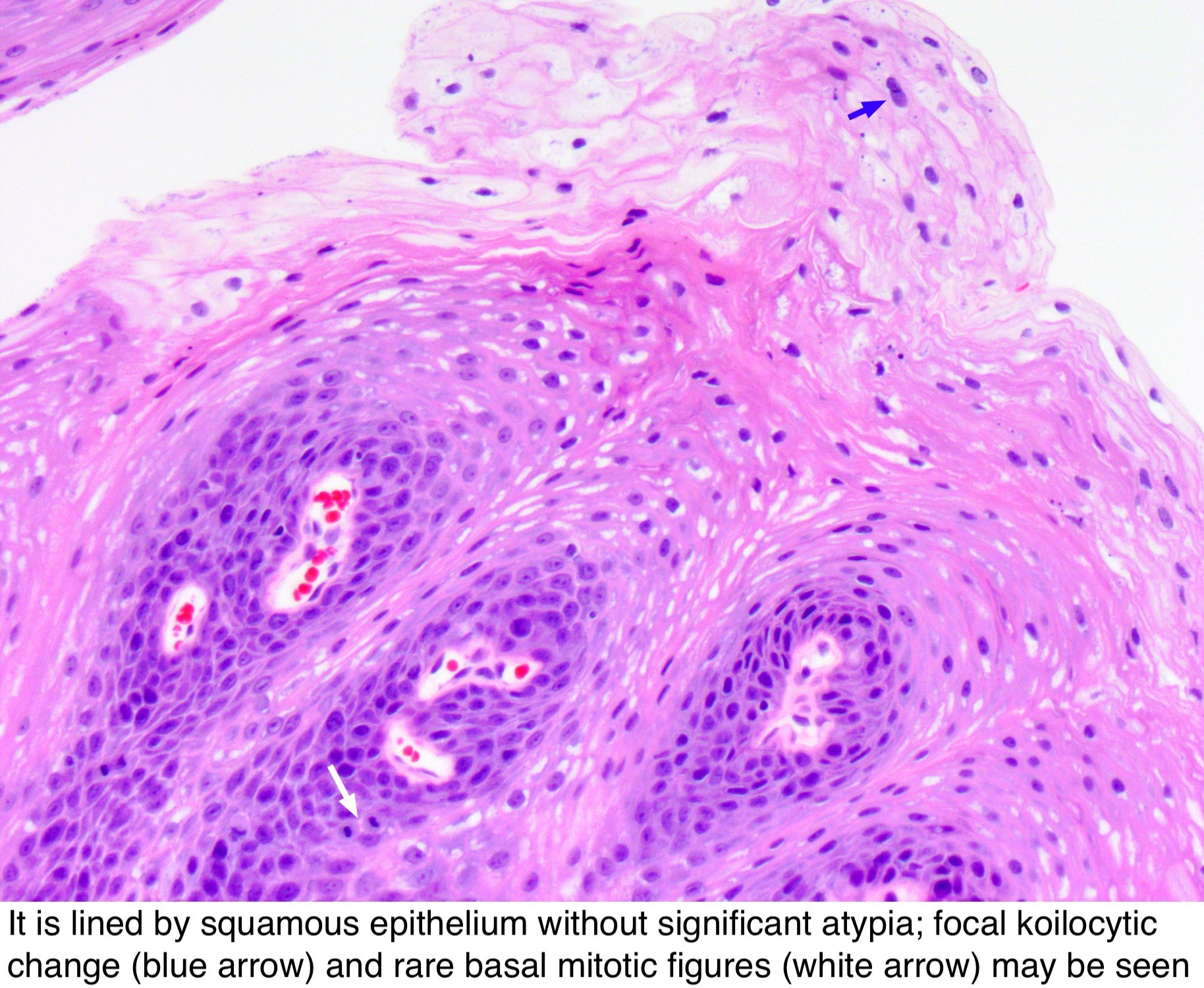 inverted papilloma associated with squamous cell carcinoma