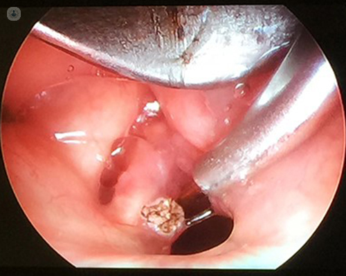 laryngeal papilloma surgical treatment