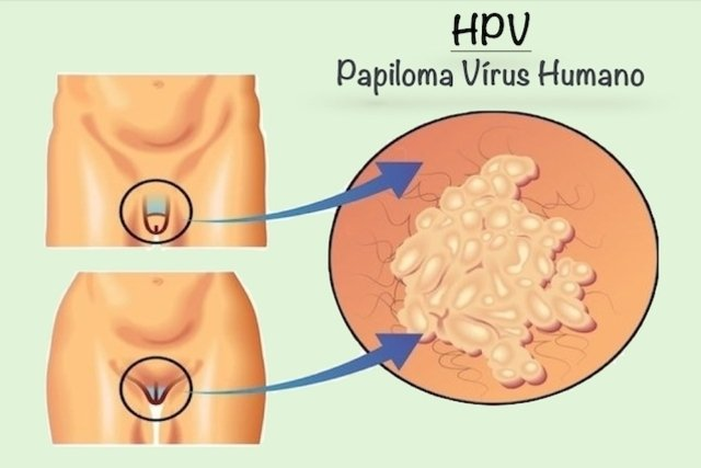 breast papilloma libre pathology hpv high risk diagnosis