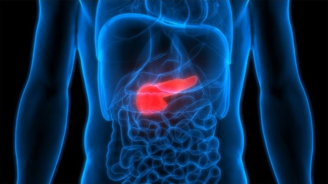 pancreatic cancer news