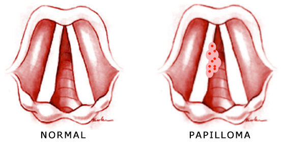 papilloma voice symptoms