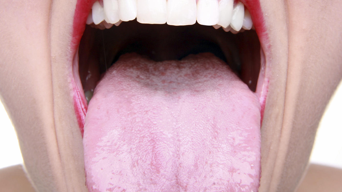Cancer oral hpv