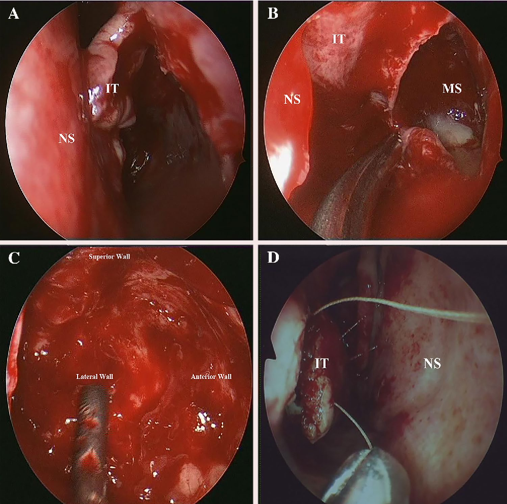 inverted papilloma in the nasal hpv nelluomo cura