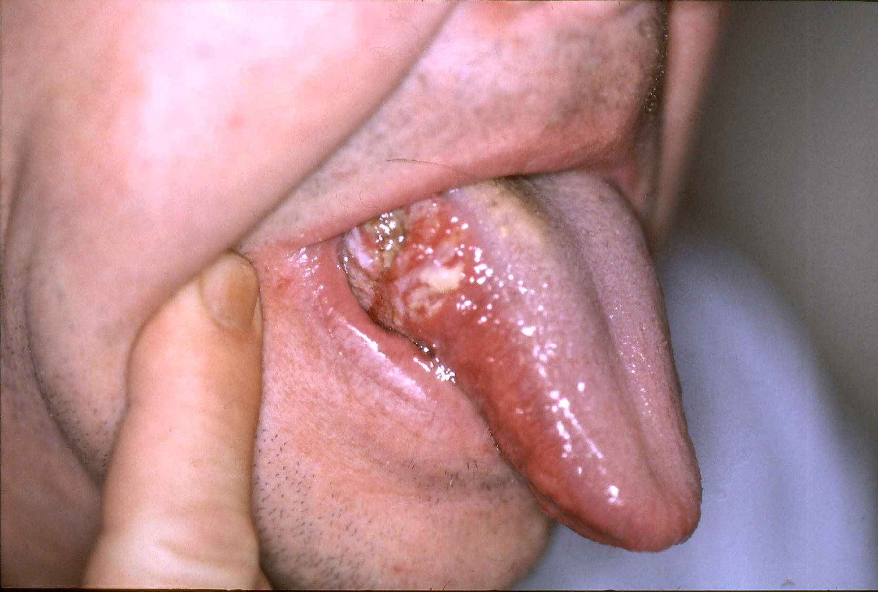 hpv on tongue how to treat cancer pulmonar etiologia