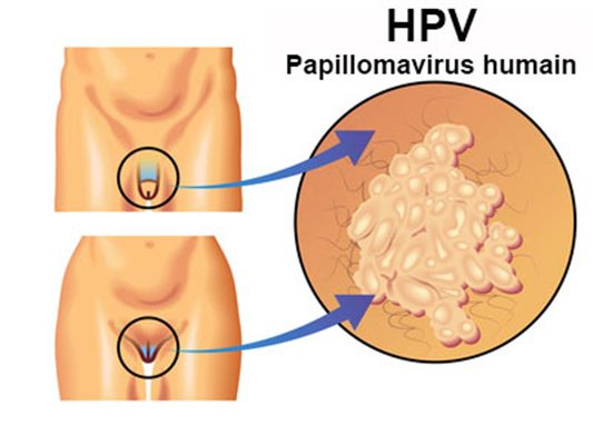 papillomavirus symptomes chez la femme papillomaviruses causing cancer evasion from host-cell control in early events in carcinogenesis