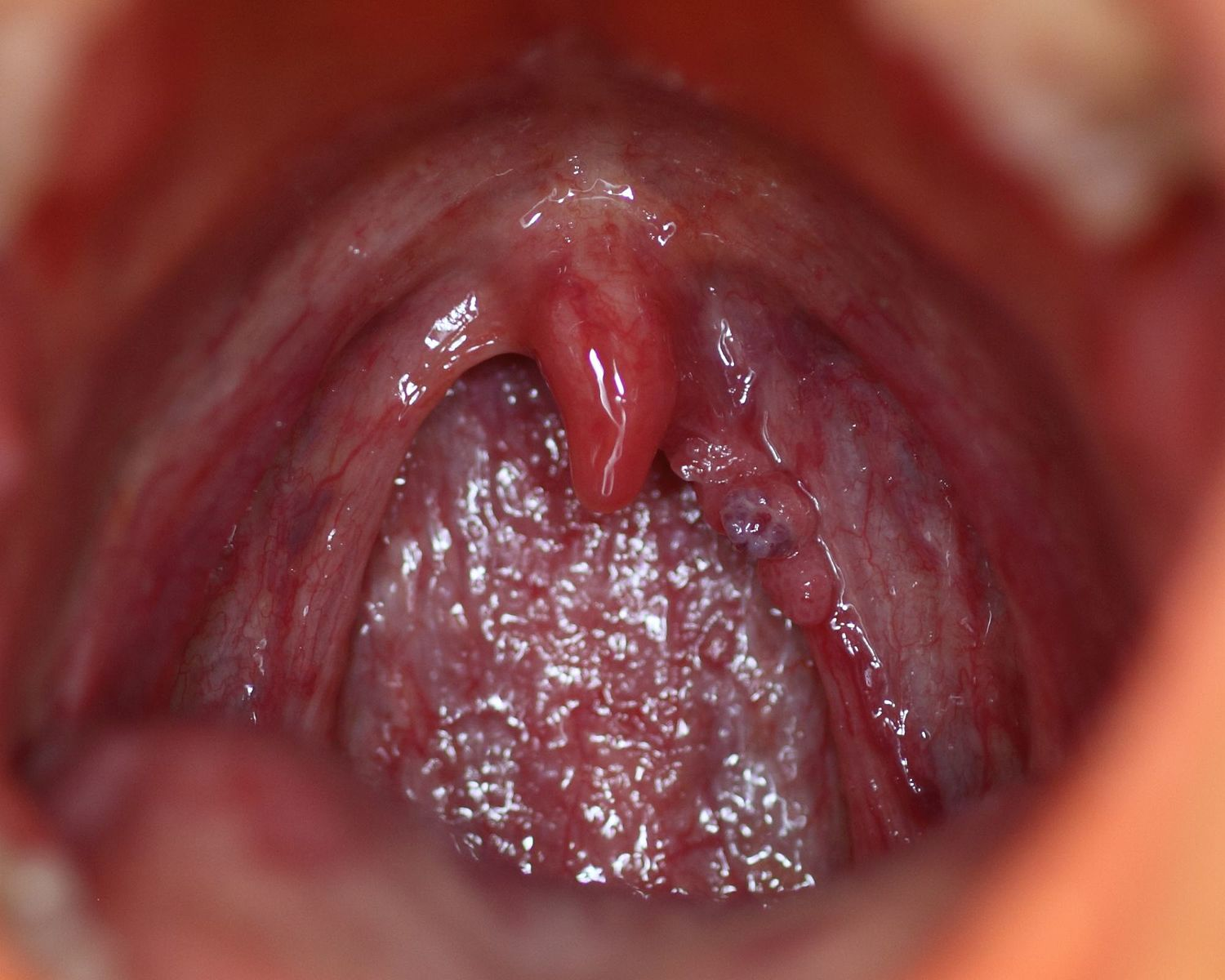 hpv virus symptoms in throat
