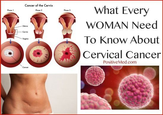 hpv and colon cancer