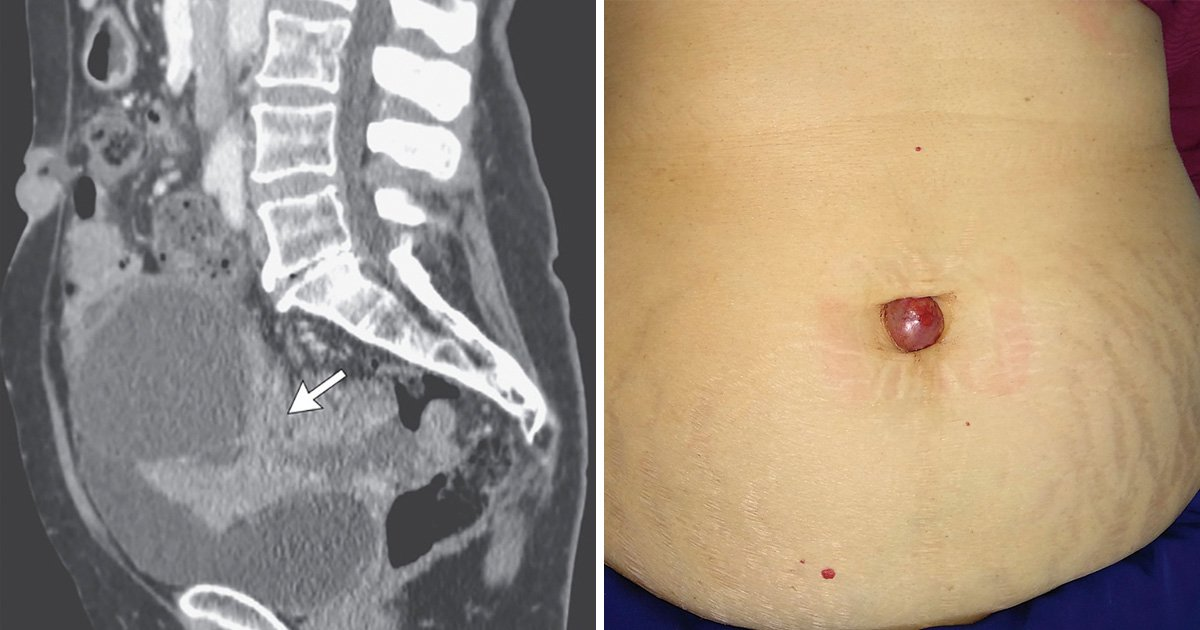 abdominal cancer belly button