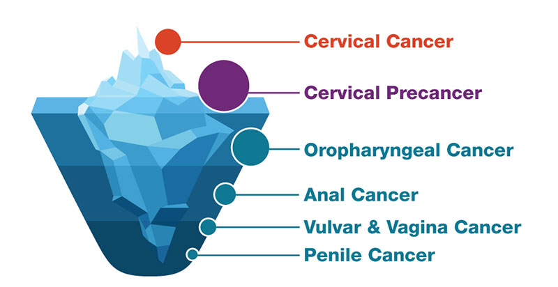 hpv cervical cancer reduction papilloma kutya