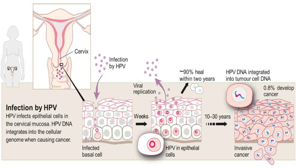 hpv and development of cervical cancer