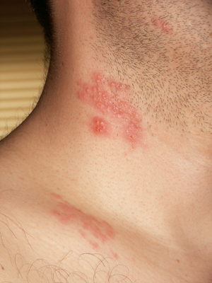 hpv or herpes which do i have vierme pulmonar sobolan