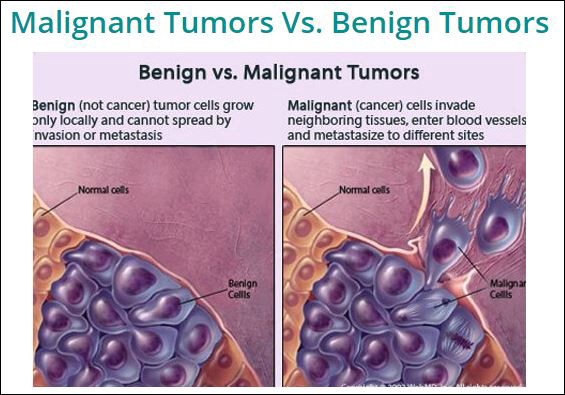 cancer benign vs malignant cancer liquido abdominal