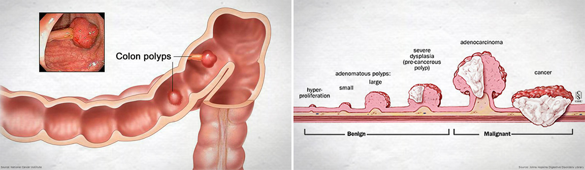cancer colon ulcer