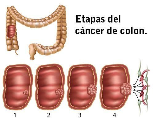 hpv pre cervical cancer hpv bucal contagio