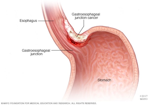 cancer gastric smoking