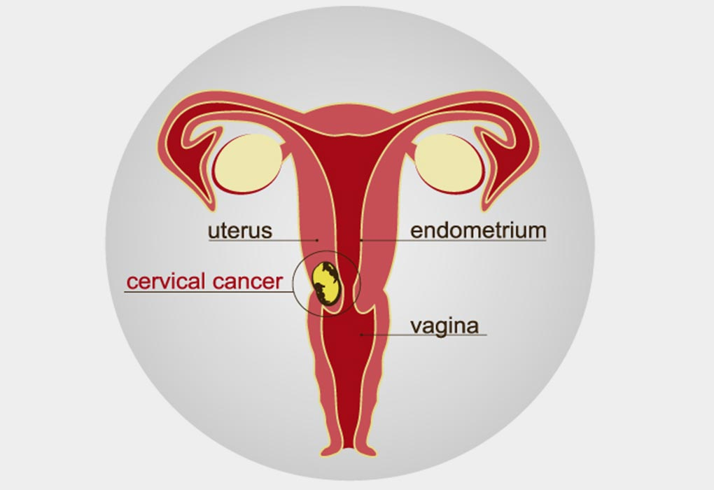 cervical cancer and fertility papillary thyroid cancer stories