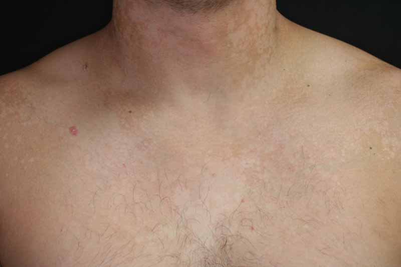 confluent and reticulated papillomatosis vs tinea versicolor