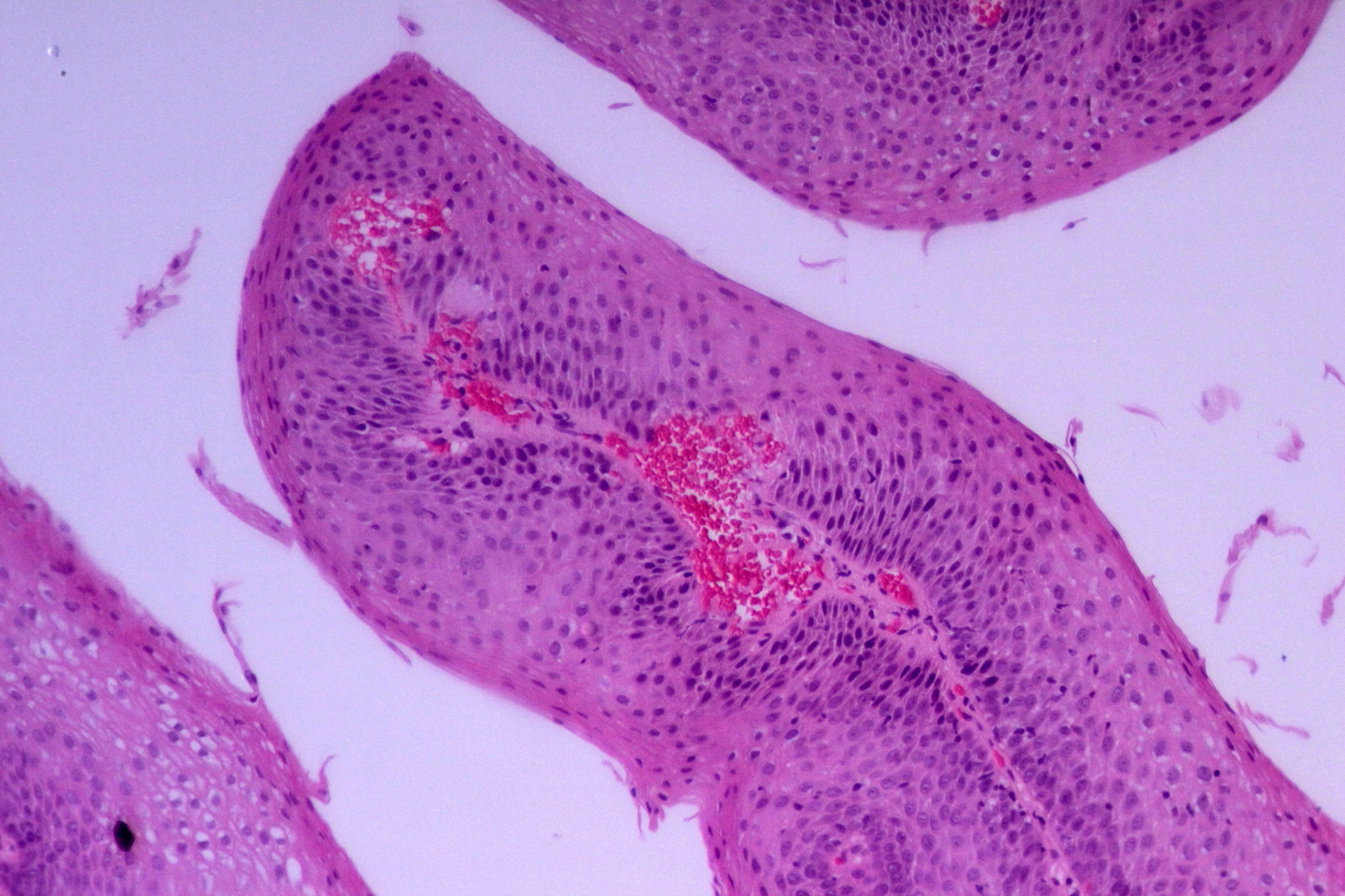 esophageal squamous papilloma histology