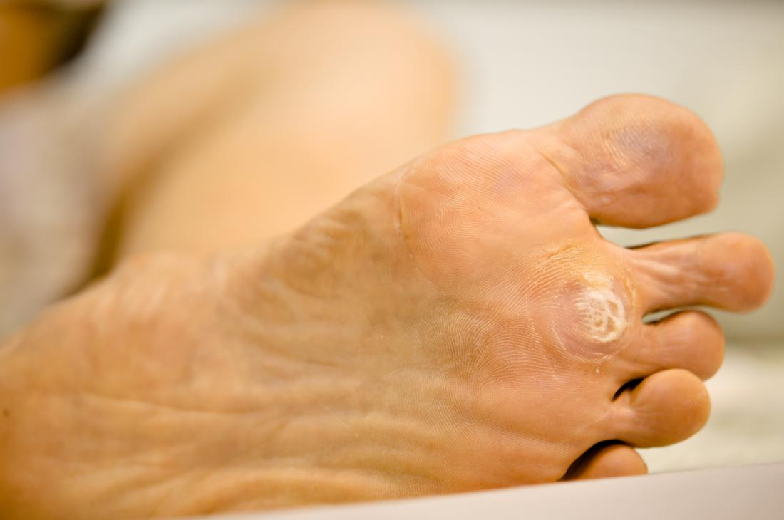 warts in foot sole