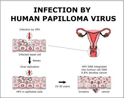 helminthic therapy food hpv virus cervical screening