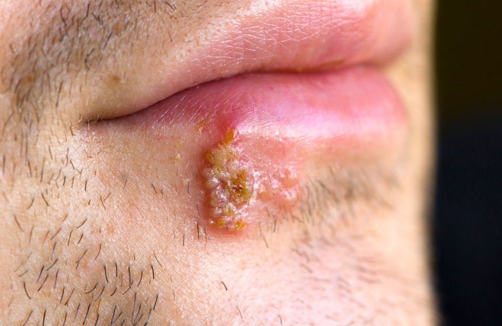 herpes hpv type