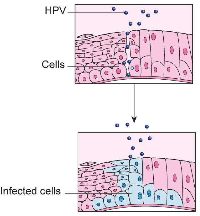 hpv cancer cells treatment