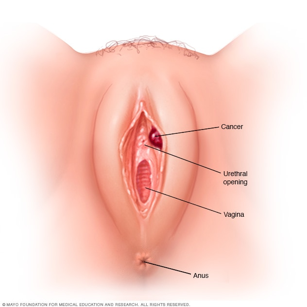 cancer ovarian primele simptome hpv aptima definition