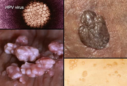hpv herpes difference