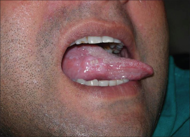 hpv squamous cell carcinoma tongue