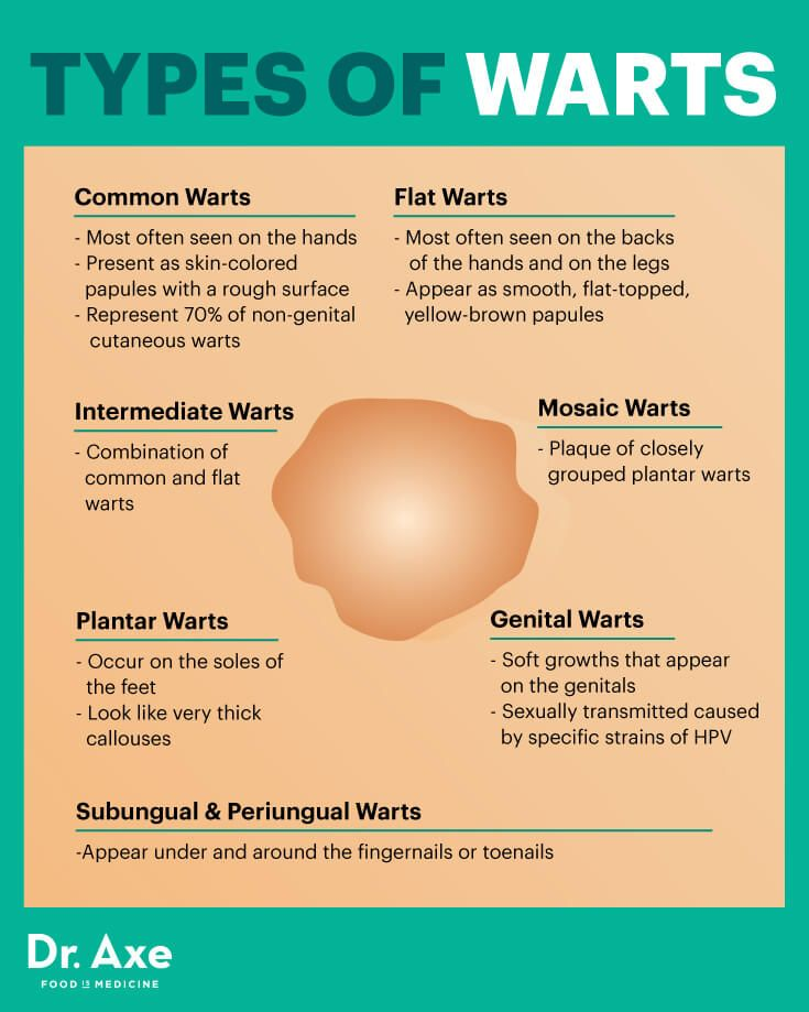 hpv warts herbal treatment sarcoma cancer causes