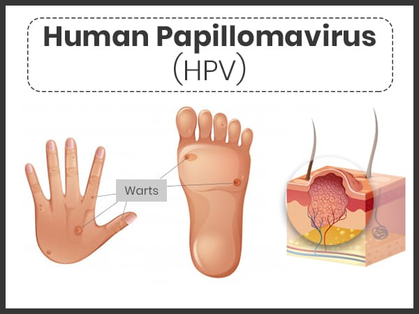 human papillomavirus infection means in hindi human papillomavirus (hpv)-related condyloma