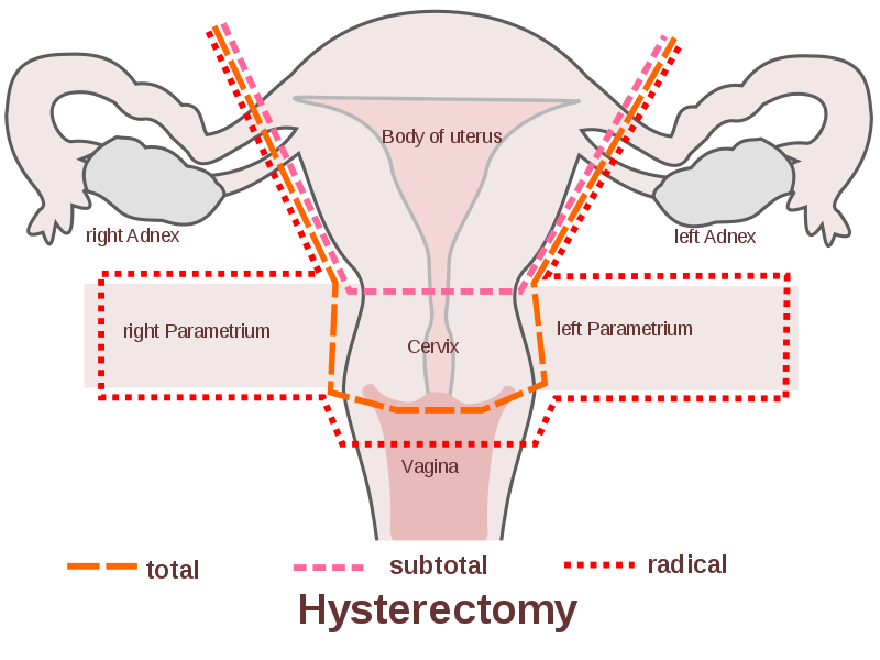 ovarian cancer years after hysterectomy human papillomaviruses and carcinogenesis well-established and novel models
