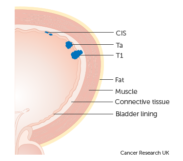 papillary urothelial carcinoma staging