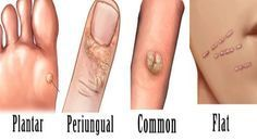 papilloma cure naturali warts on hands and feet contagious