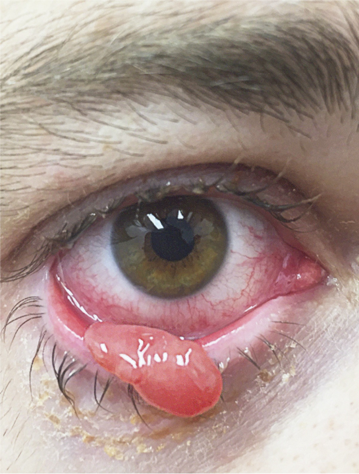 papilloma eyelid removal cpt