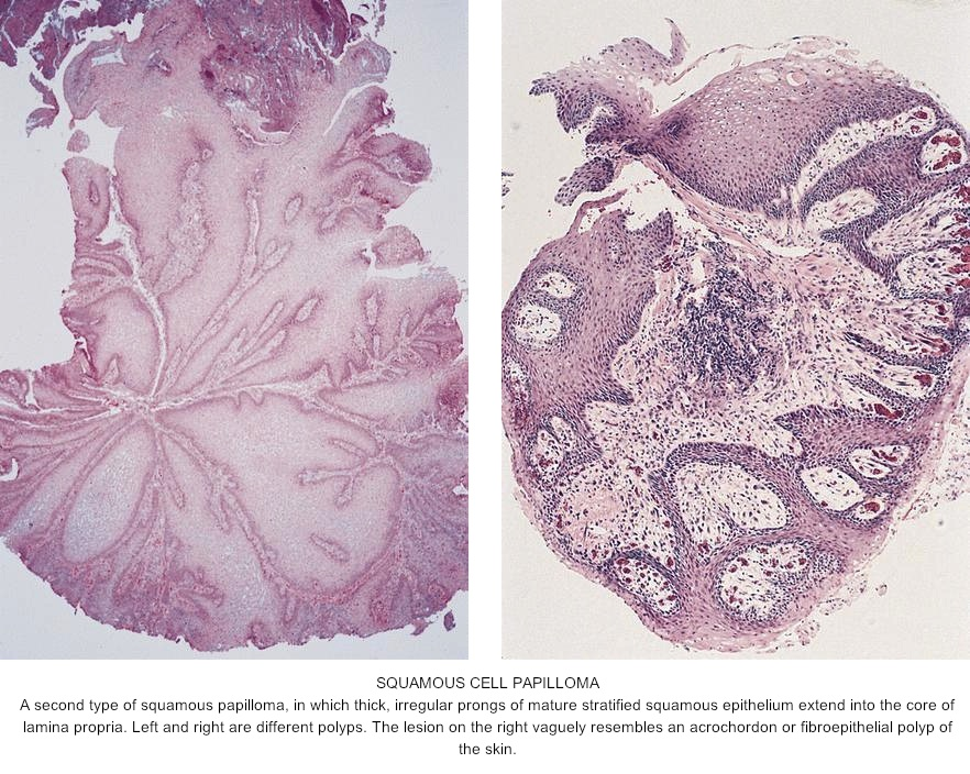 papilloma of esophagus