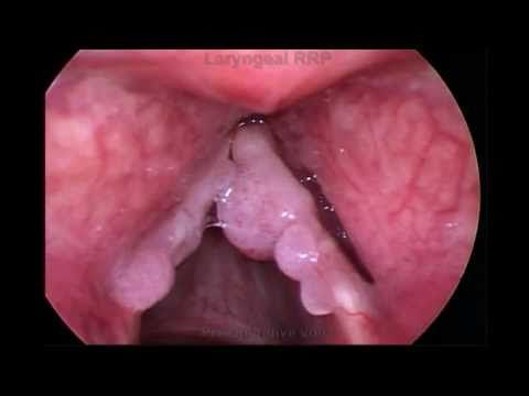 papilloma voice symptoms hpv mouth transmission