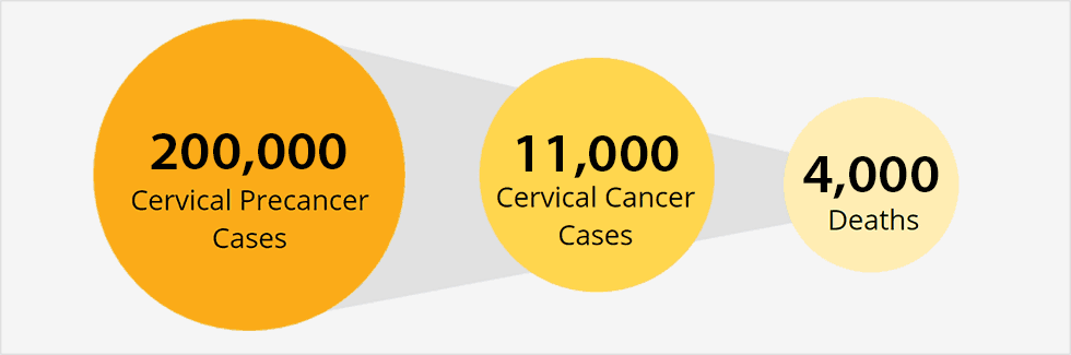 ovarian cancer misdiagnosis stories